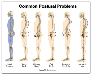 Bad-Postures
